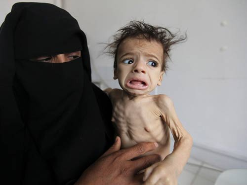 5.2 million Yemeni kids on brink of famine amid Saudi war: Save the Children